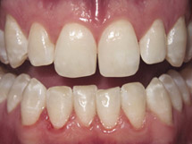 After minimally invasive dentistry at Spektor Dental